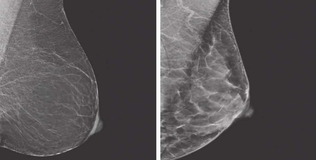 A comparison of fatty breast tissue (left) to dense breast tissue (right). Dense breast tissue is comprised of less fat and more connective tissue, which appears white on a mammogram. Cancer also appears white on a mammogram, meaning that tumors are often hidden behind the dense tissue.